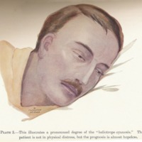 The clinical features of the influenza epidemic of 1918-19.